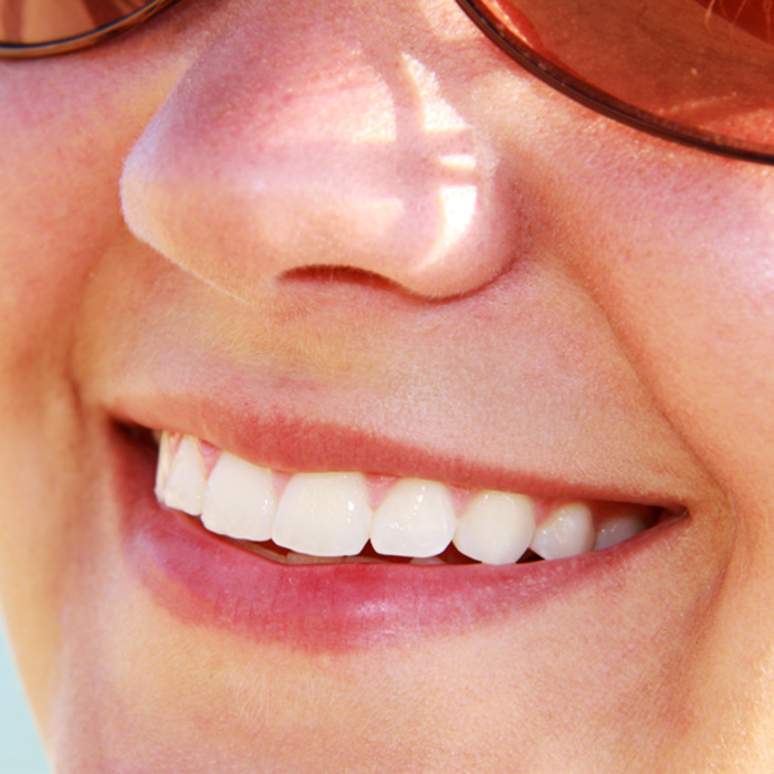 The Dangers Of DIY Teeth Whitening