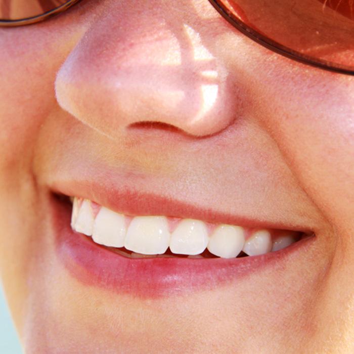 The Dangers Of DIY Teeth Whitening
